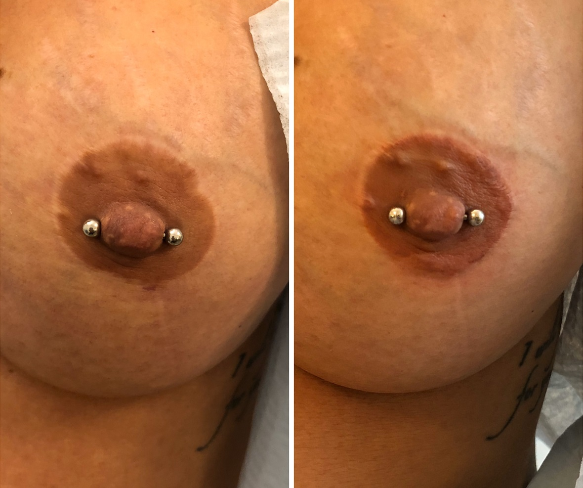areola pigment